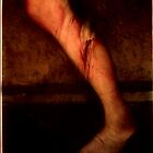 Torn Anterior Cruciate Ligament by Adam Brunckhorst