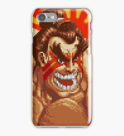 E. Honda iPhone Case/Skin