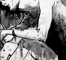 some bruises wont heal  by Loui  Jover