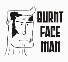 Burnt Face Man by Steve Lambert