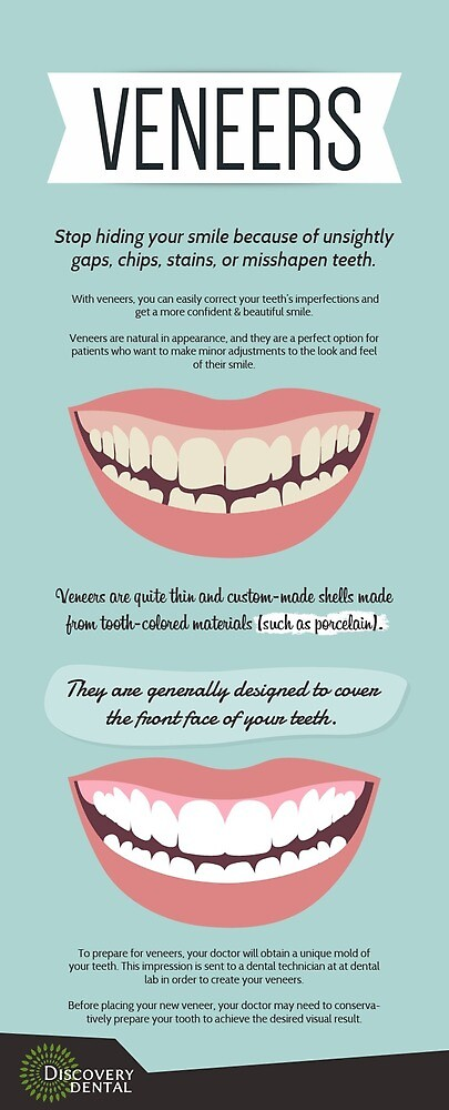 Restore Your Teeth with Veneers Procedure at Discovery Dental WA by Dentist Issaquah