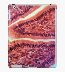 Intestine Cells under the Microscope iPad Case/Skin