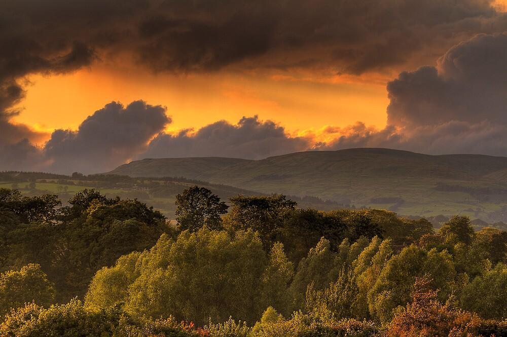 Campsie Sky by Karl Williams