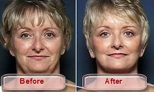 Get Face Lift Surgery to Improve your Appearance at Cheaper Price  by aestheticturkey