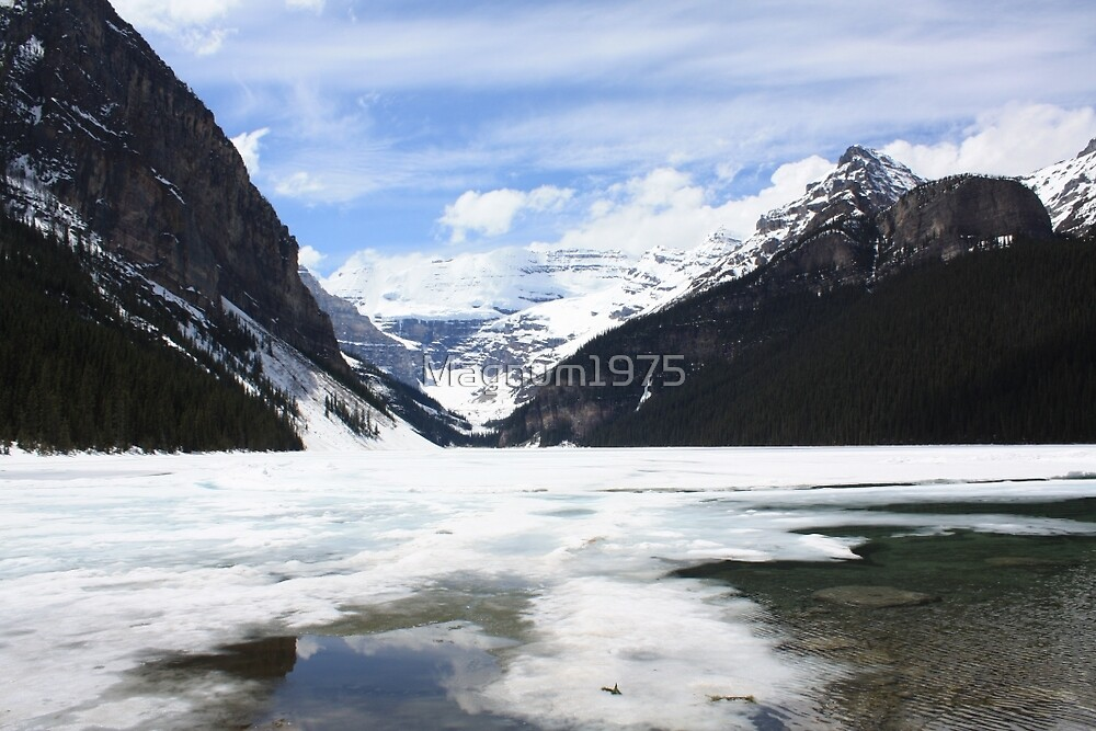 Lake Louise by Magnum1975