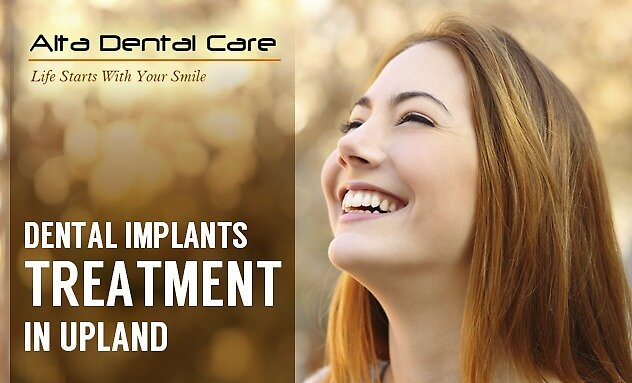 Dental Implants Treatment in Upland by Dental Care