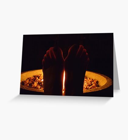 Fiery Toes Greeting Card