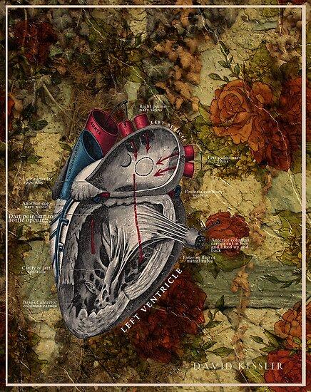 Heart attack and Vine by David Kessler
