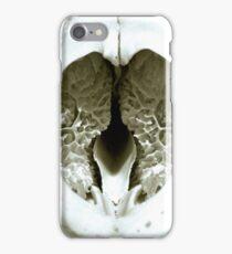 Badger's Brains iPhone Case/Skin