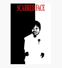 Scarred Face Photographic Print