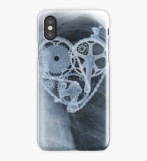 BiKE LOVE X Ray bicycle heart components iPhone Case
