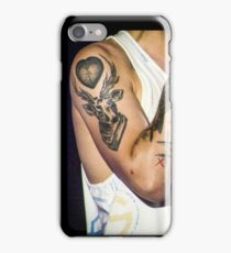 Louis Tomlinson | One Direction iPhone Case/Skin