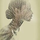 Rhinoplantsy by Vin  Zzep