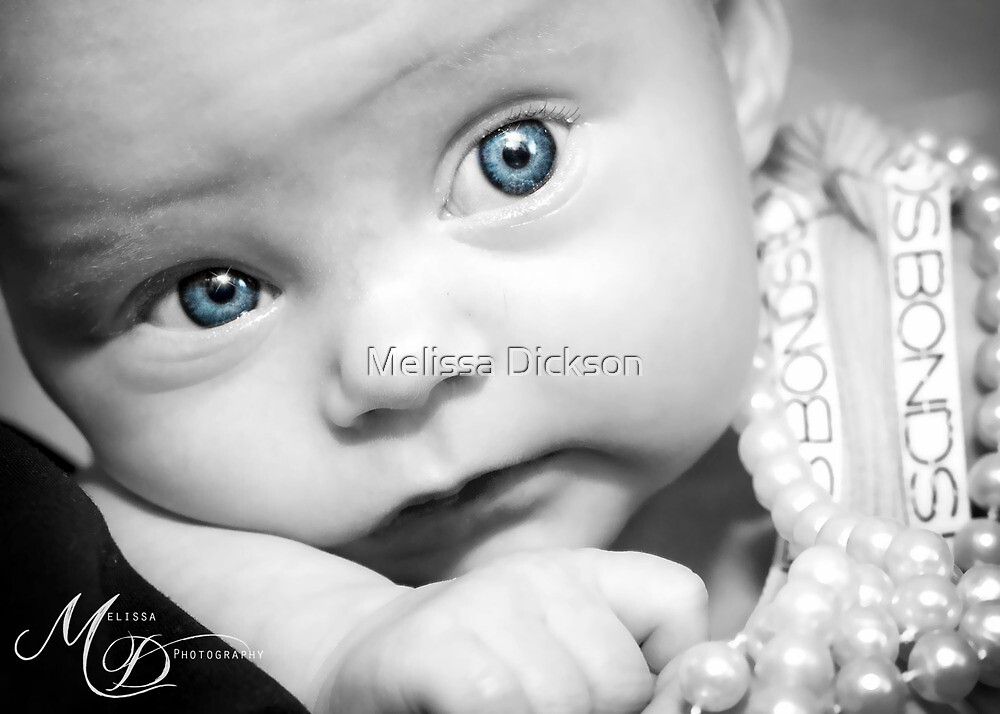 Bright Eyes by Melissa Dickson