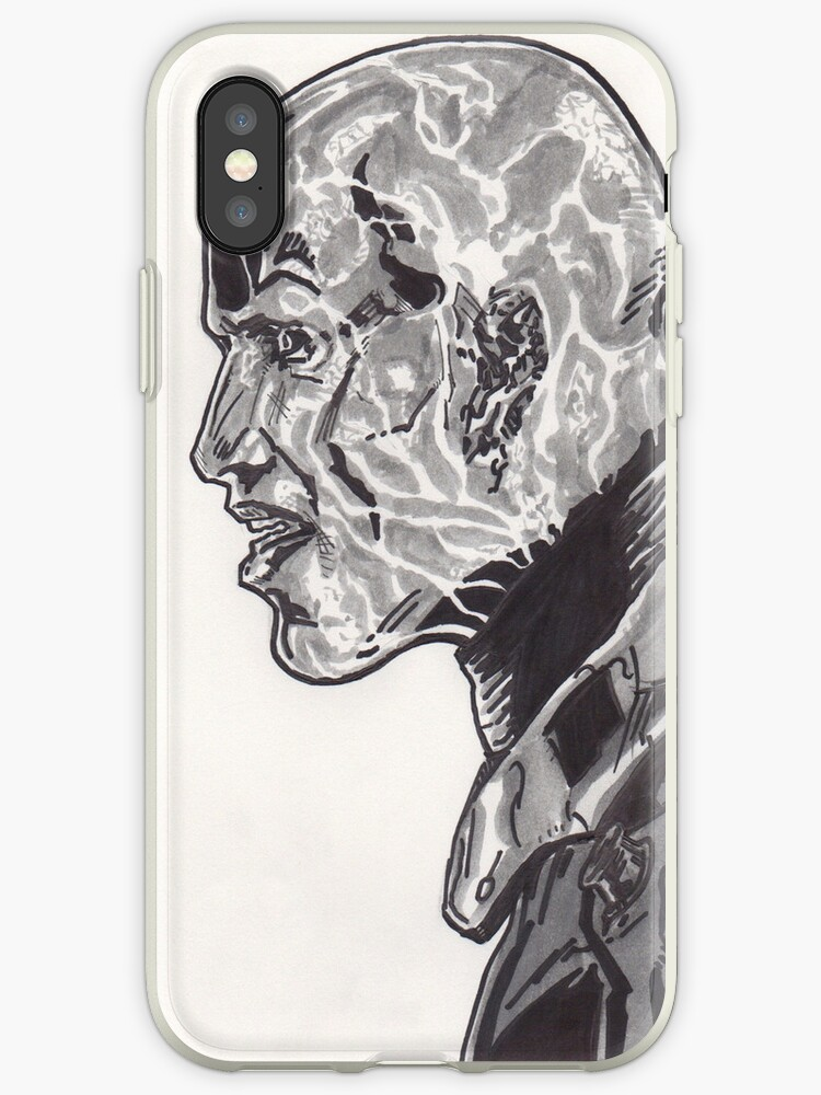 Electro Shcok Therapy i-Phone Case by Matthew Merys