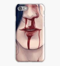 Nosebleed iPhone Case/Skin