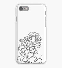 scoliosis iPhone Case/Skin