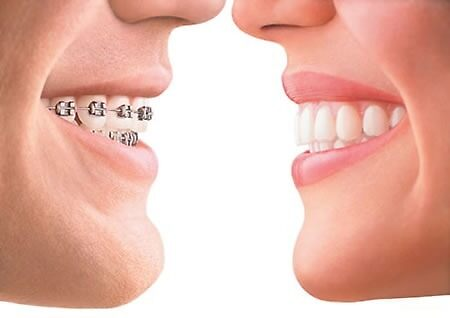 Best Invisible Braces in Delhi by smileoracles