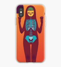 The Bones iPhone Case