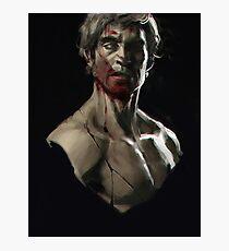 Hannibal - Patroclus Photographic Print