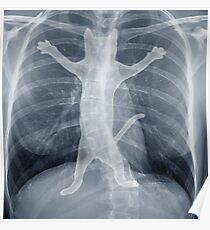X Ray Poster
