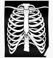 X-ray Chest Poster