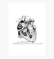 The Heart, right ventricle openned. Photographic Print