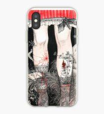 Legs iPhone Case
