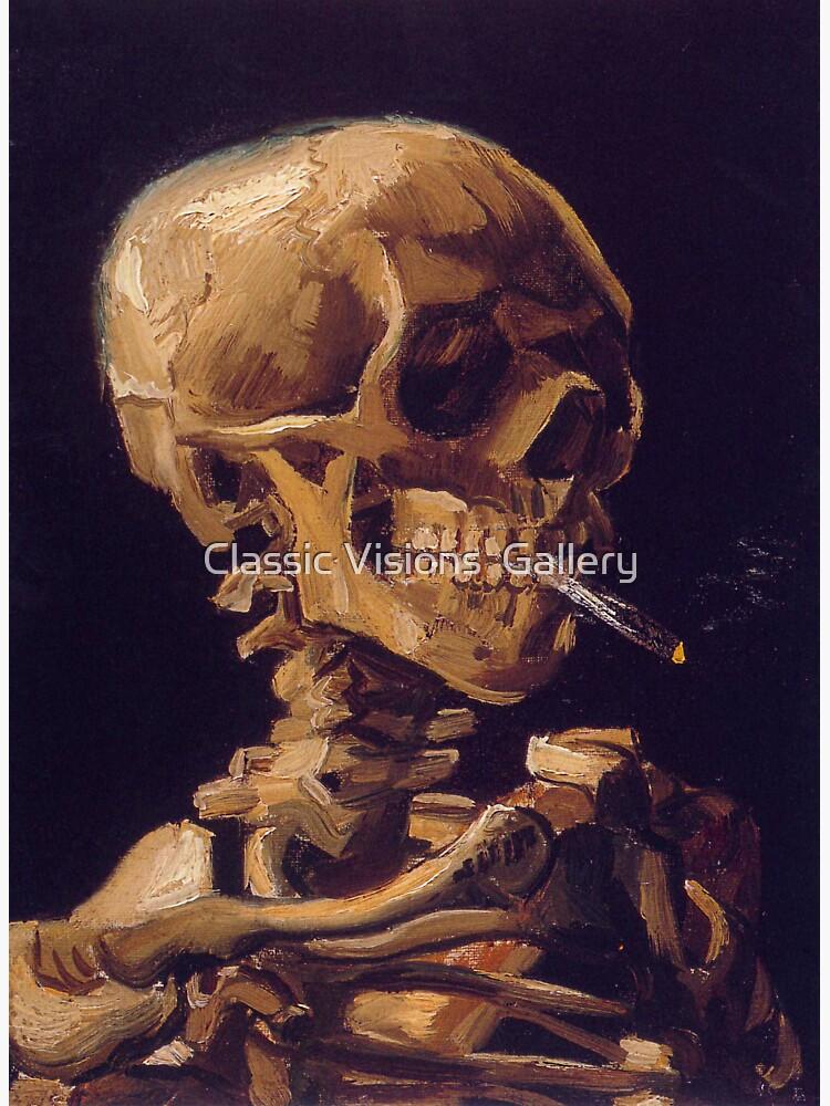 """Vincent Van Goghs """"Schädel mit brennender Zigarette"""" von RozAbellera"""