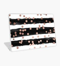 Girly rose gold confetti black watercolor stripes Laptop Skin