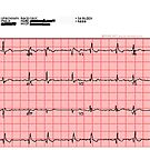Standard 12-Lead ECG by The Student Physiologist