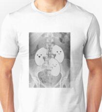 Kidney Transplant Recipient  T-Shirt