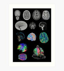 Brain Imaging Art Print