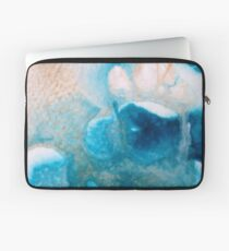 LEAPS & BOUNDS Laptop Sleeve