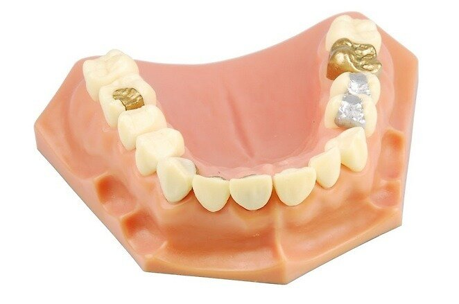 Advantages and Disadvantages of teeth bonding by Dr. Robert Mokbel