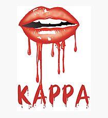 kappa red dripping lips Photographic Print