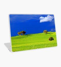 Green Acres  Laptop Skin