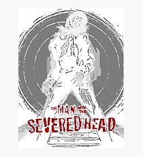 severed head Photographic Print