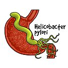 Helicobacter pylori  by the vexed  muddler