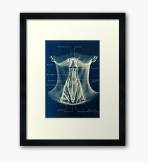 Historical surgical chart Framed Print