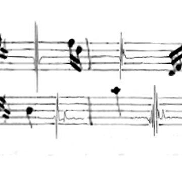 EMG note progression by performartsmed