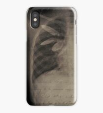The Human Anatomy I iPhone Case/Skin
