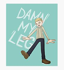 DAMN MY LEG Photographic Print