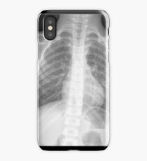 x-ray iPhone Case