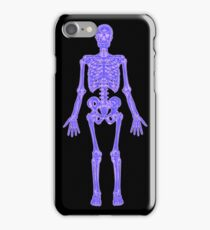 XRAY Skeleton iPhone / Samsung Galaxy Case iPhone Case/Skin