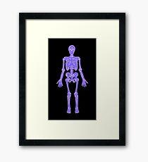 XRAY Skeleton iPhone / Samsung Galaxy Case Framed Print