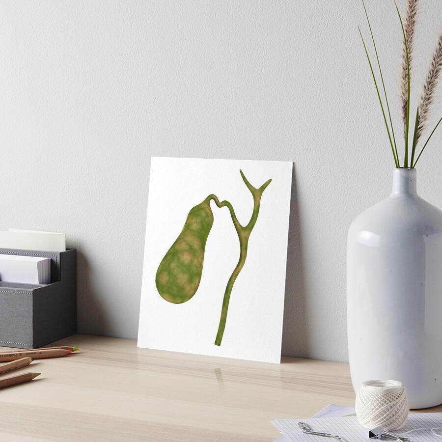 Láminas de exposición «Imagen conceptual de la vesícula biliar ...