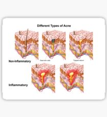 Different types of acne, non-inflammatory and inflammatory. Sticker