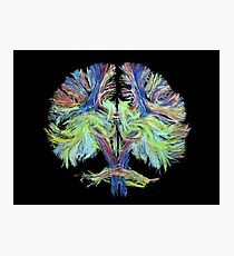 Tractography on black Photographic Print