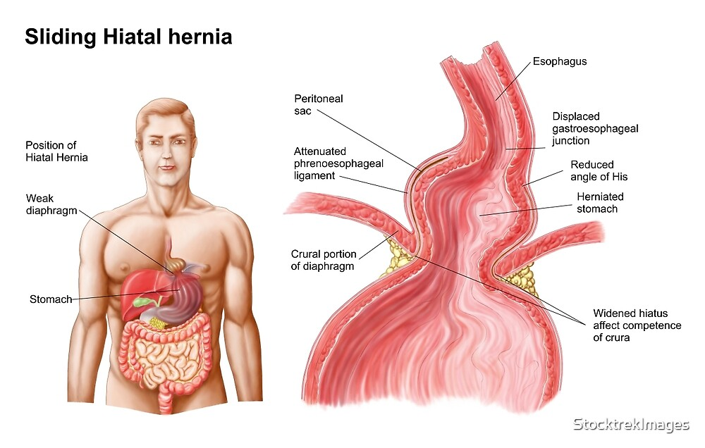 Medical Illustration Of A Hiatal Hernia In The Upper Part Of The
